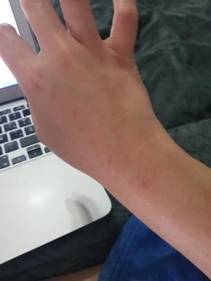 como combatir el acné de manera efectiva