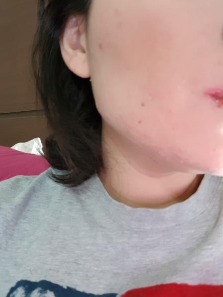 Como combatir el acne de manera efectiva